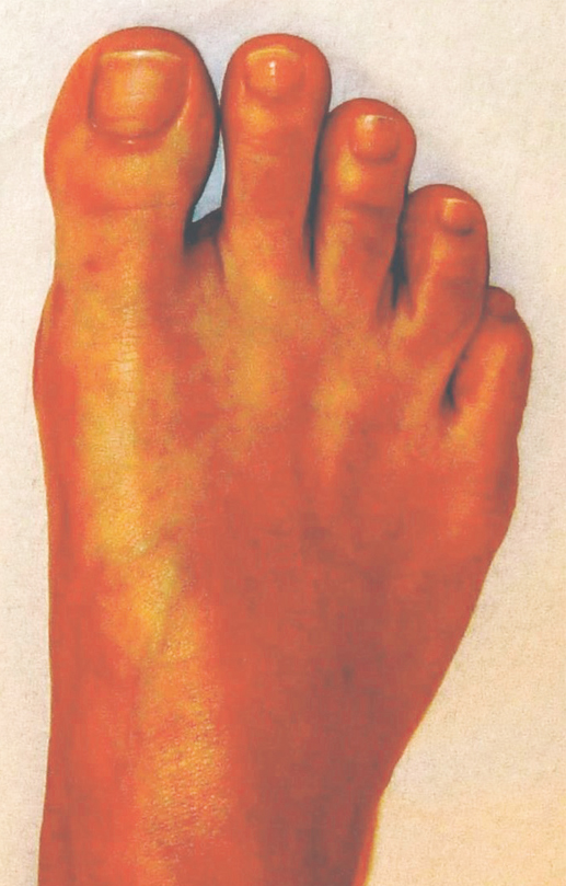 Fuß mit gerade gestelltem Grosszeh