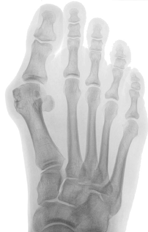 Röntgenbild vor der Operation